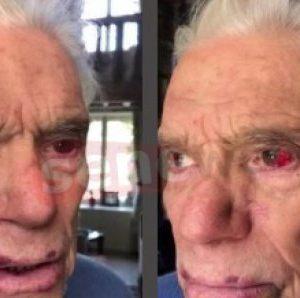Bernard Tapie agressé : l'homme d'affaires partage une photo de ses blessures